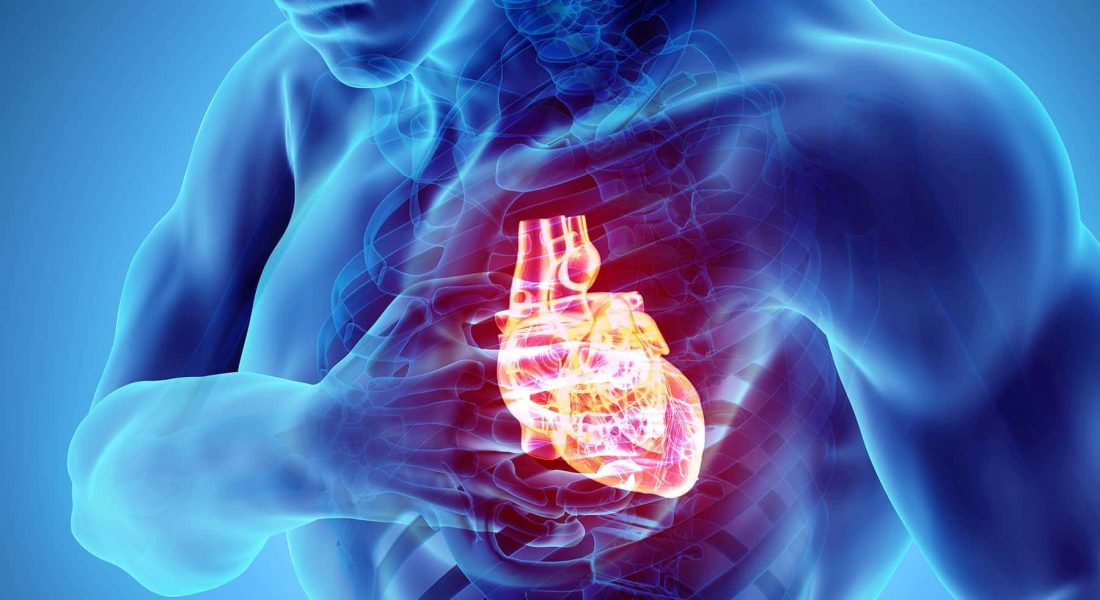 Automated External Defibrillators: Do You Need An AED?