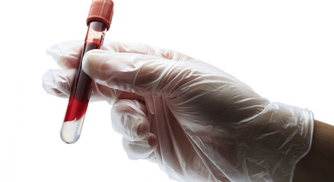 6 Essential Blood Tests You Should Have