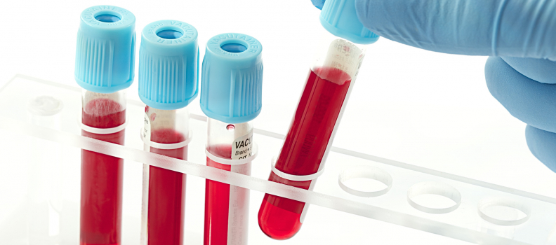Manufactured blood ready for human trials in 2 years